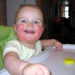 Атопічний дерматит у дітей діагностика лікування та профілактика