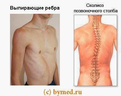 Сколіоз і випирають ребра