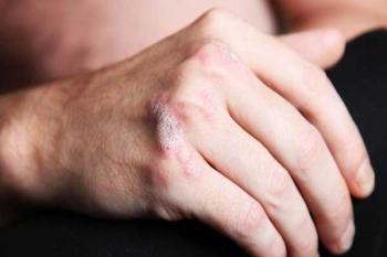 Псоріартріческій артрит