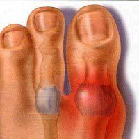 Історія ювенільний ревматоїдний артрит