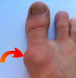 Кісточки на великих пальцях ніг. Причини і лікування
