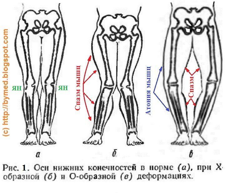 Криві ноги
