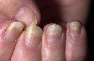 Лікування народними засобами грибкові ураження нігтів