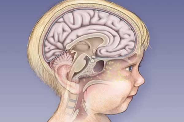 Ознаки менінгіту у дітей