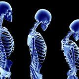 Остеопороз ранні ознаки діагностика профілактика і лікування