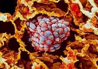 Причини і механізми виникнення раку. Лікування раку.