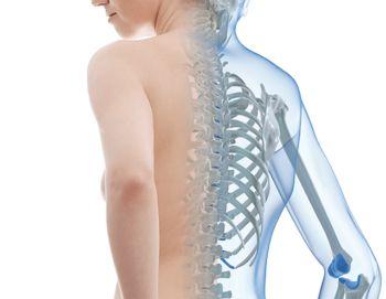 Симптоми остеопорозу. Чим небезпечне захворювання ?: причини виникнення, симптоми, лікування.